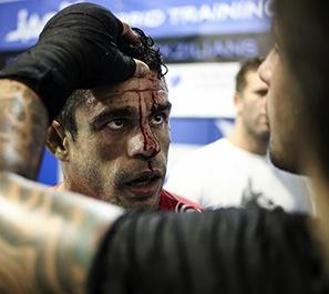 cuts Vitor belfort